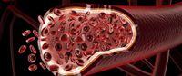 Différents traitements pour aider face aux troubles des veines