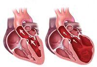 Les traitements des maladies du coeur