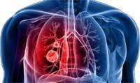 Les solutions pour traiter les bronchites graves